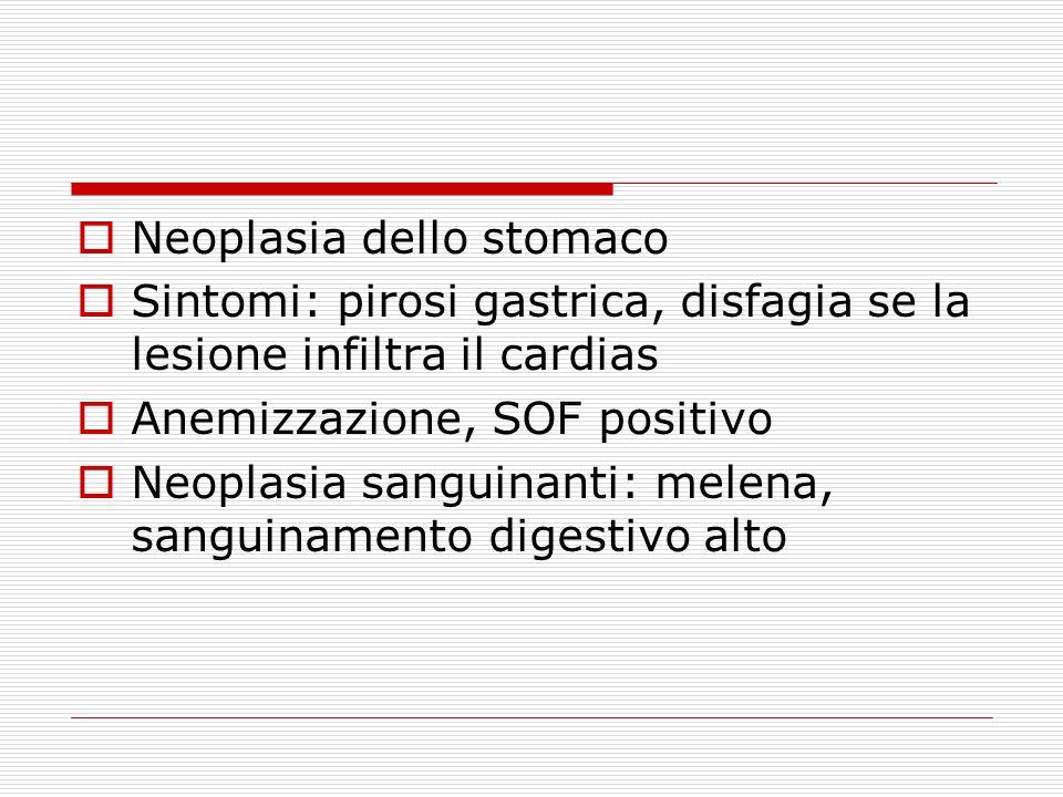 Neoplasia dello stomaco Sintomi: pirosi gastrica, disfagia se la lesione infiltra il cardias Anemizzazione, SOF positivo Neoplasia sanguinanti: melena