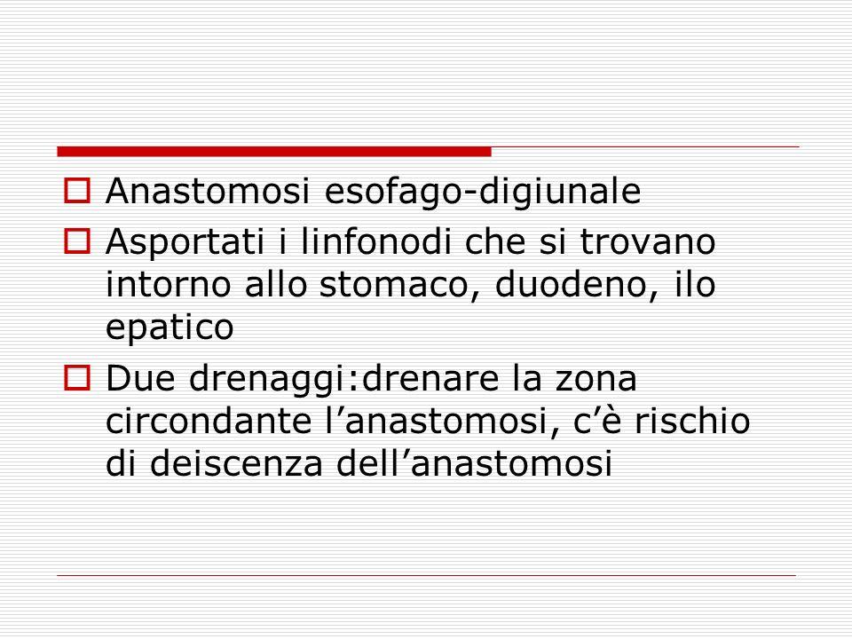 Anastomosi esofago-digiunale Asportati i linfonodi che si trovano intorno allo stomaco, duodeno, ilo epatico Due drenaggi:drenare la zona circondante