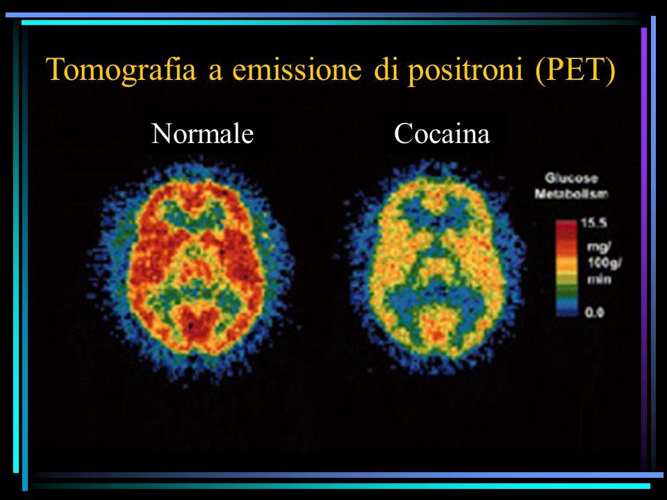 NormaleCocaina Tomografia a emissione di positroni (PET)