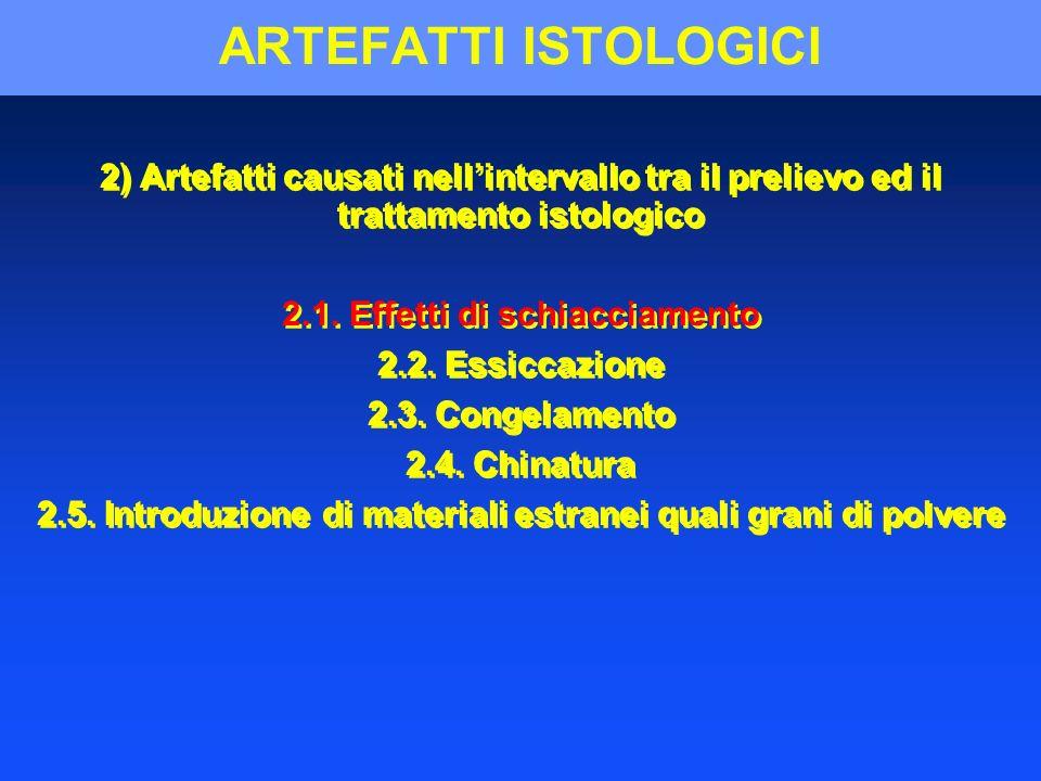 ARTEFATTI ISTOLOGICI 2) Artefatti causati nellintervallo tra il prelievo ed il trattamento istologico 2.1. Effetti di schiacciamento 2.2. Essiccazione