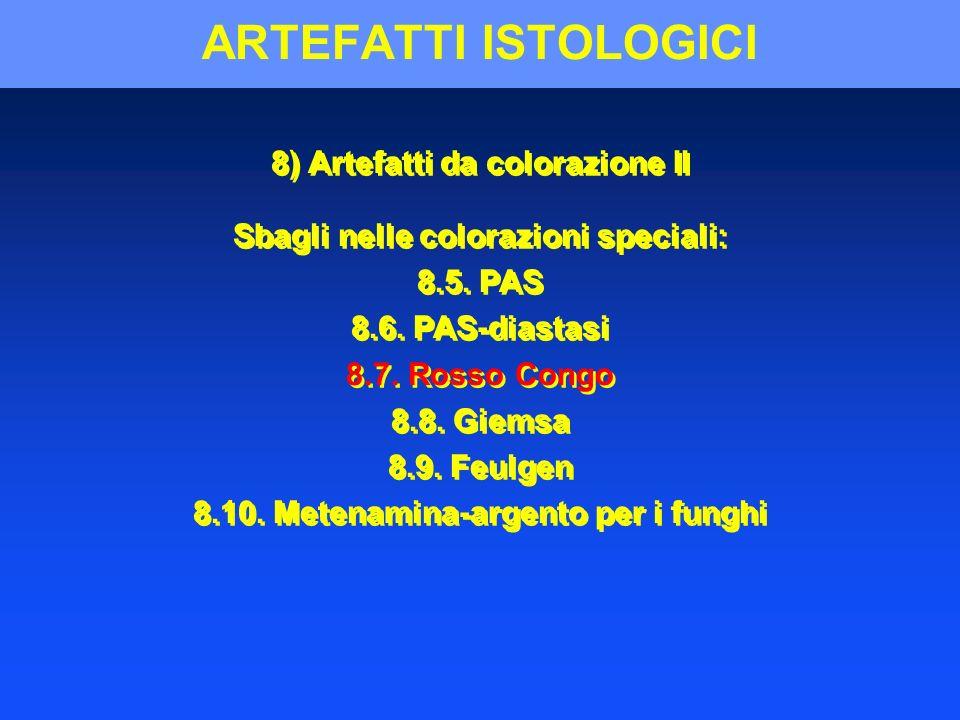 ARTEFATTI ISTOLOGICI 8) Artefatti da colorazione II Sbagli nelle colorazioni speciali: 8.5. PAS 8.6. PAS-diastasi 8.7. Rosso Congo 8.8. Giemsa 8.9. Fe