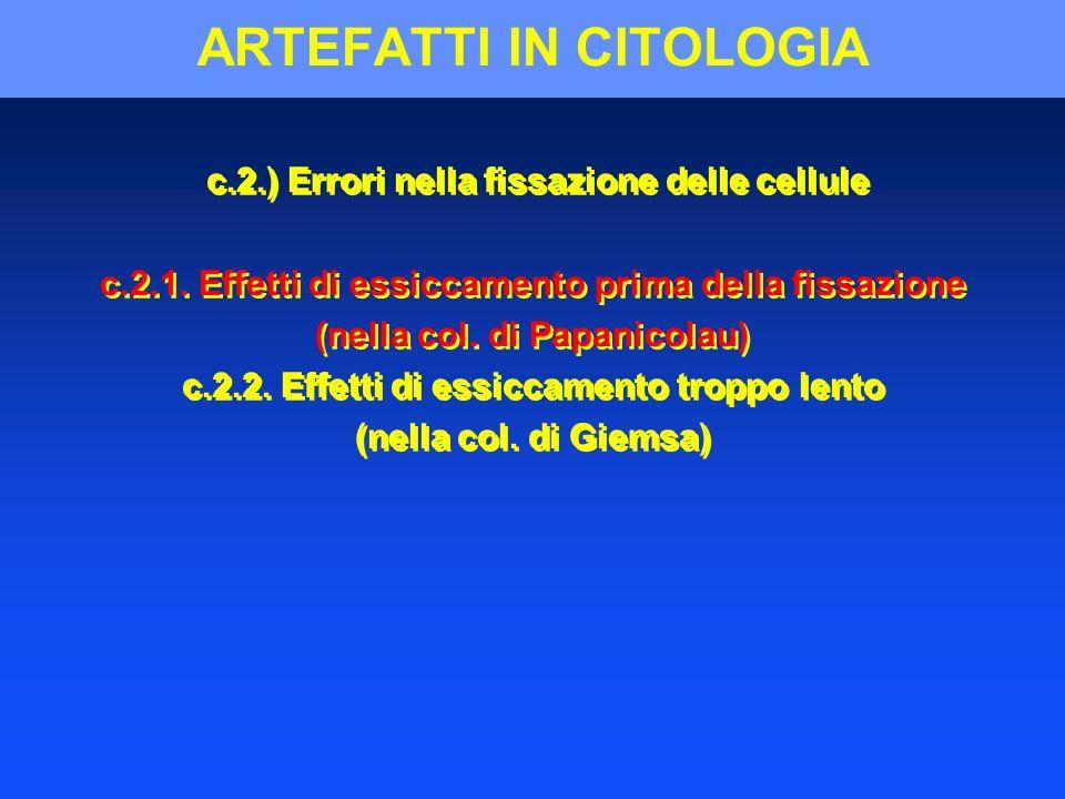 ARTEFATTI IN CITOLOGIA c.2.) Errori nella fissazione delle cellule c.2.1. Effetti di essiccamento prima della fissazione (nella col. di Papanicolau) c