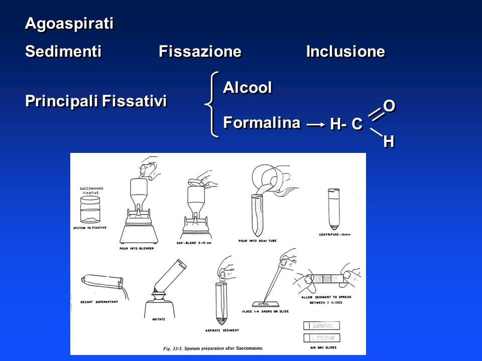 Agoaspirati Sedimenti FissazioneInclusione Principali Fissativi Agoaspirati Sedimenti FissazioneInclusione Principali Fissativi Alcool Formalina Alcoo