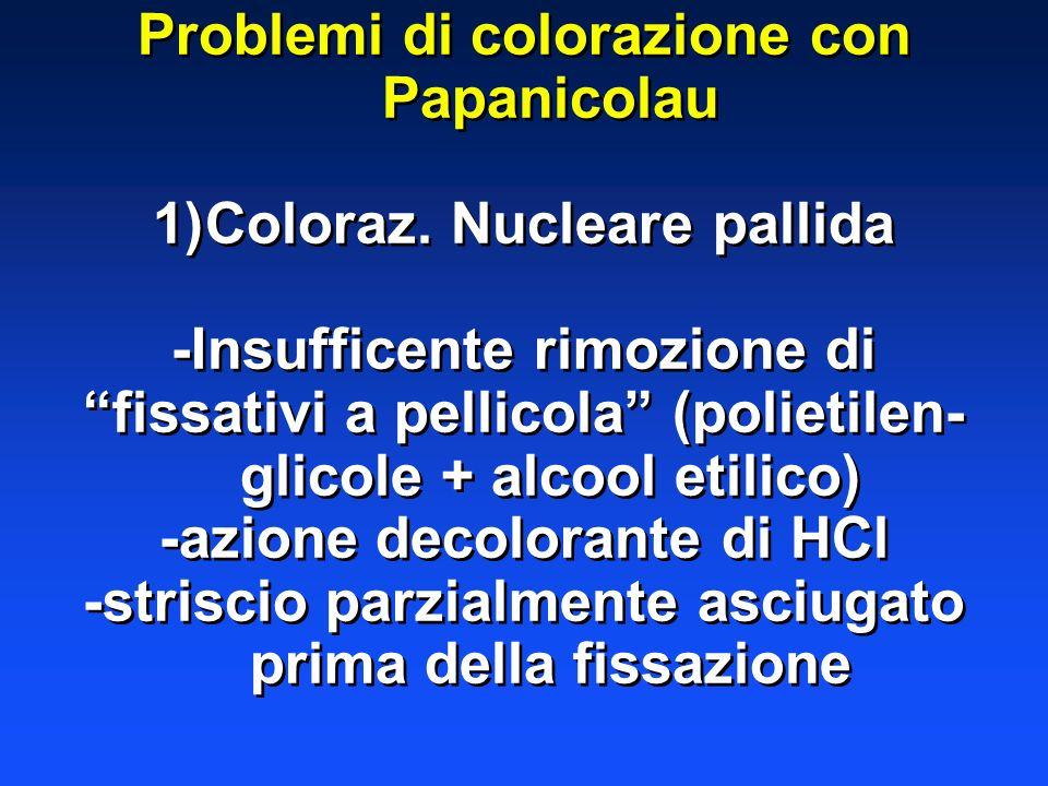 Problemi di colorazione con Papanicolau 1)Coloraz. Nucleare pallida -Insufficente rimozione di fissativi a pellicola (polietilen- glicole + alcool eti