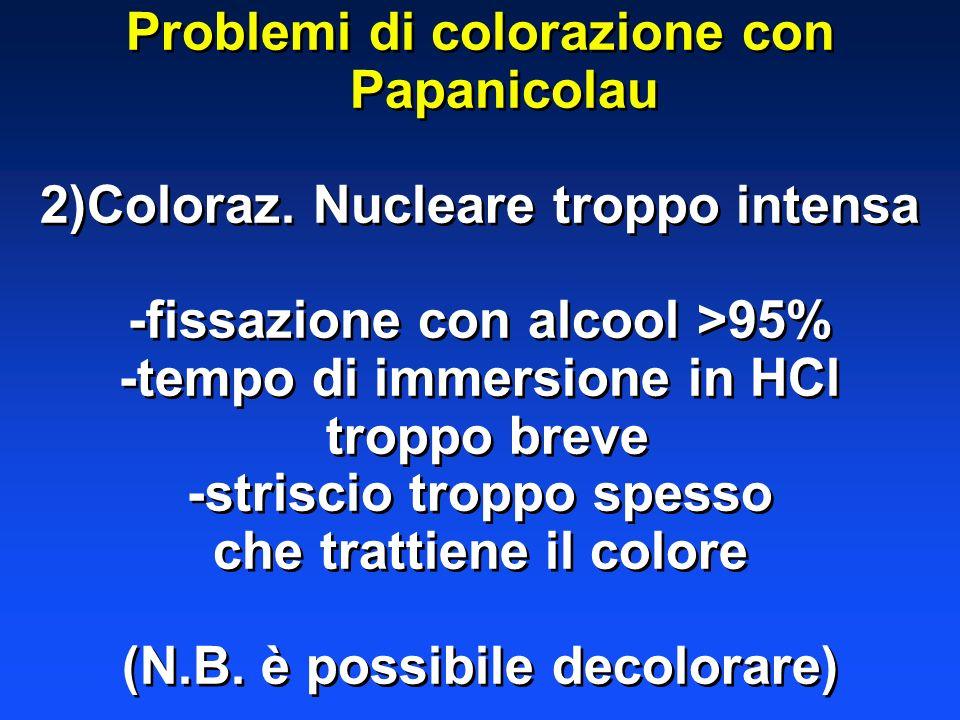 Problemi di colorazione con Papanicolau 2)Coloraz. Nucleare troppo intensa -fissazione con alcool >95% -tempo di immersione in HCl troppo breve -stris