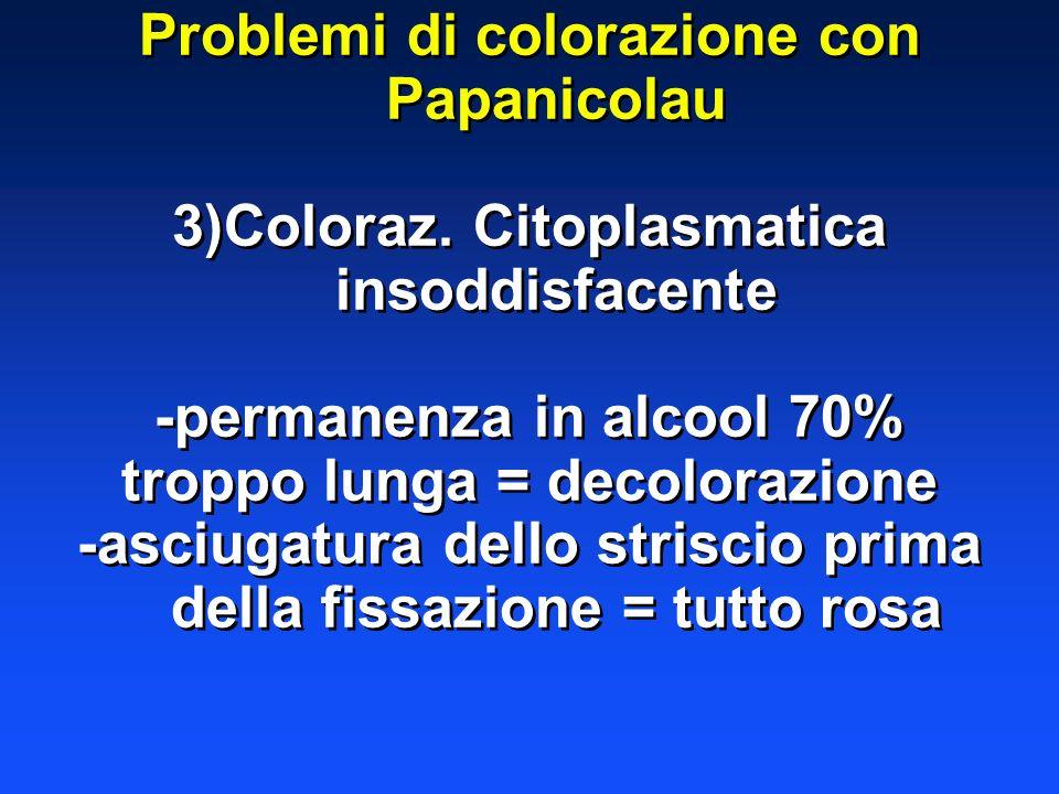 Problemi di colorazione con Papanicolau 3)Coloraz. Citoplasmatica insoddisfacente -permanenza in alcool 70% troppo lunga = decolorazione -asciugatura