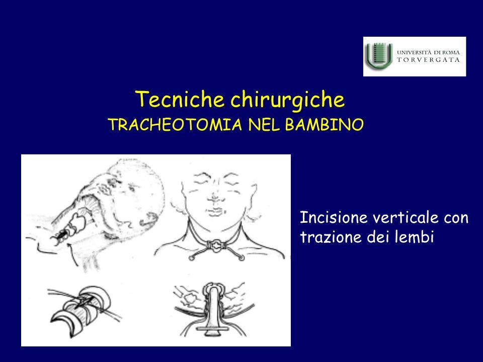 Tecniche chirurgiche TRACHEOTOMIA NEL BAMBINO Incisione verticale con trazione dei lembi