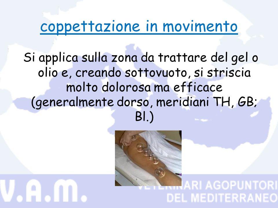 coppettazione in movimento Si applica sulla zona da trattare del gel o olio e, creando sottovuoto, si striscia molto dolorosa ma efficace (generalmente dorso, meridiani TH, GB; Bl.)