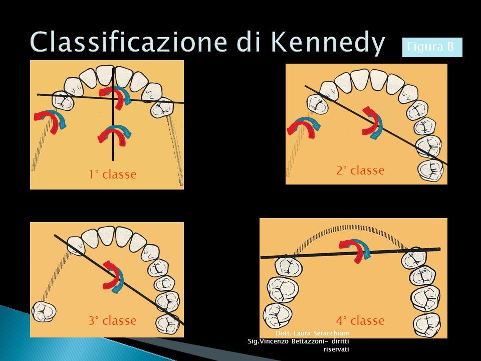 Vi sono inoltre le regole fisiche basilari, in particolare quelle riguardanti leve e piani inclinati, fondamentali in fase di progettazione per evitare di produrre scheletrati che, proprio per il mancato rispetto di primarie leggi meccaniche, potrebbero diventare agenti demolitivi dei denti di supporto e dei tessuti circostanti, invece che protesi riabilitative (foto 6 e 7).