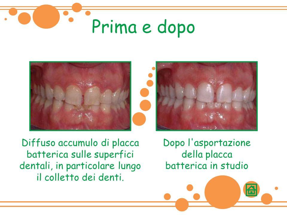 Prima e dopo Diffuso accumulo di placca batterica sulle superfici dentali, in particolare lungo il colletto dei denti.