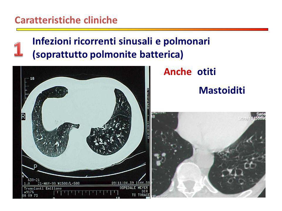 Caratteristiche cliniche Infezioni ricorrenti sinusali e polmonari (soprattutto polmonite batterica) Anche otiti Mastoiditi
