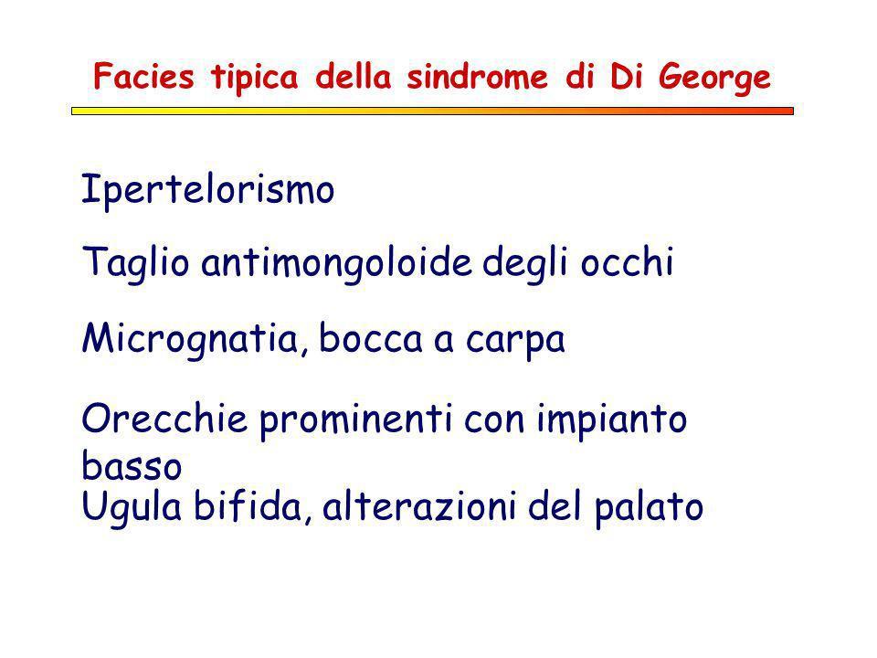 Facies tipica della sindrome di Di George Ipertelorismo Taglio antimongoloide degli occhi Micrognatia, bocca a carpa Orecchie prominenti con impianto