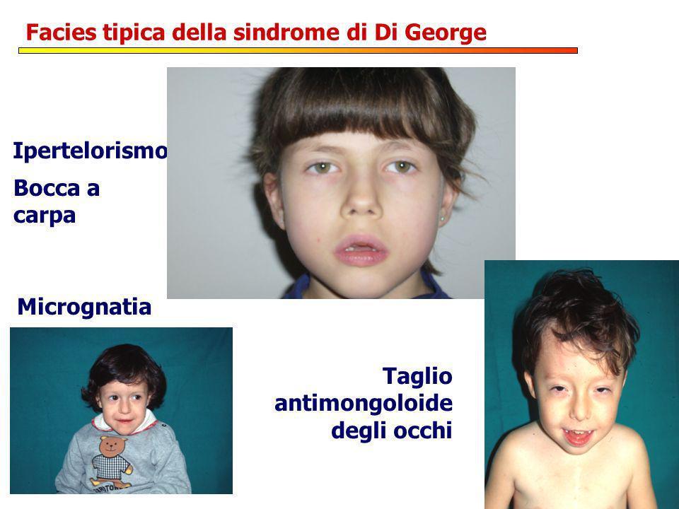 Facies tipica della sindrome di Di George Ipertelorismo Taglio antimongoloide degli occhi Bocca a carpa Micrognatia