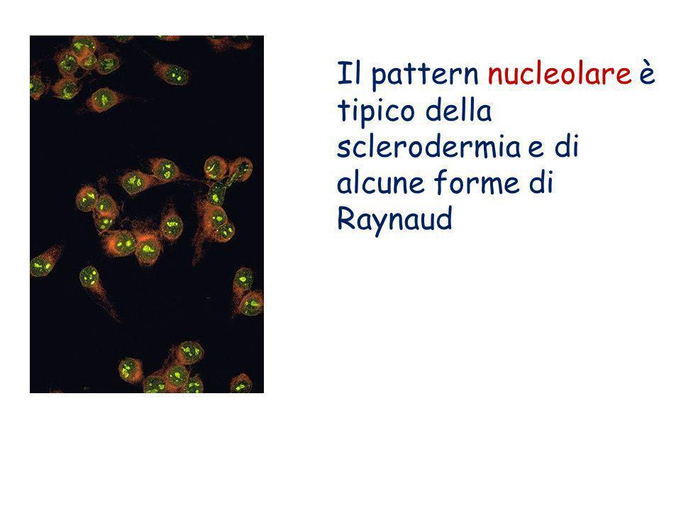 Il pattern nucleolare è tipico della sclerodermia e di alcune forme di Raynaud