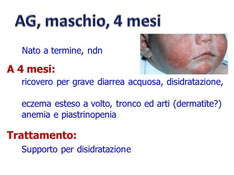 Nato a termine, ndn ricovero per grave diarrea acquosa, disidratazione, eczema esteso a volto, tronco ed arti (dermatite?) anemia e piastrinopenia A 4