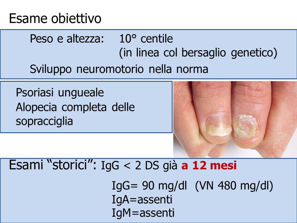 Esame obiettivo Psoriasi ungueale Alopecia completa delle sopracciglia Peso e altezza: 10° centile (in linea col bersaglio genetico) Sviluppo neuromot