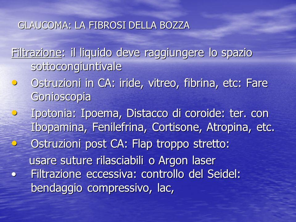 GLAUCOMA: LA FIBROSI DELLA BOZZA Filtrazione: il liquido deve raggiungere lo spazio sottocongiuntivale Ostruzioni in CA: iride, vitreo, fibrina, etc: