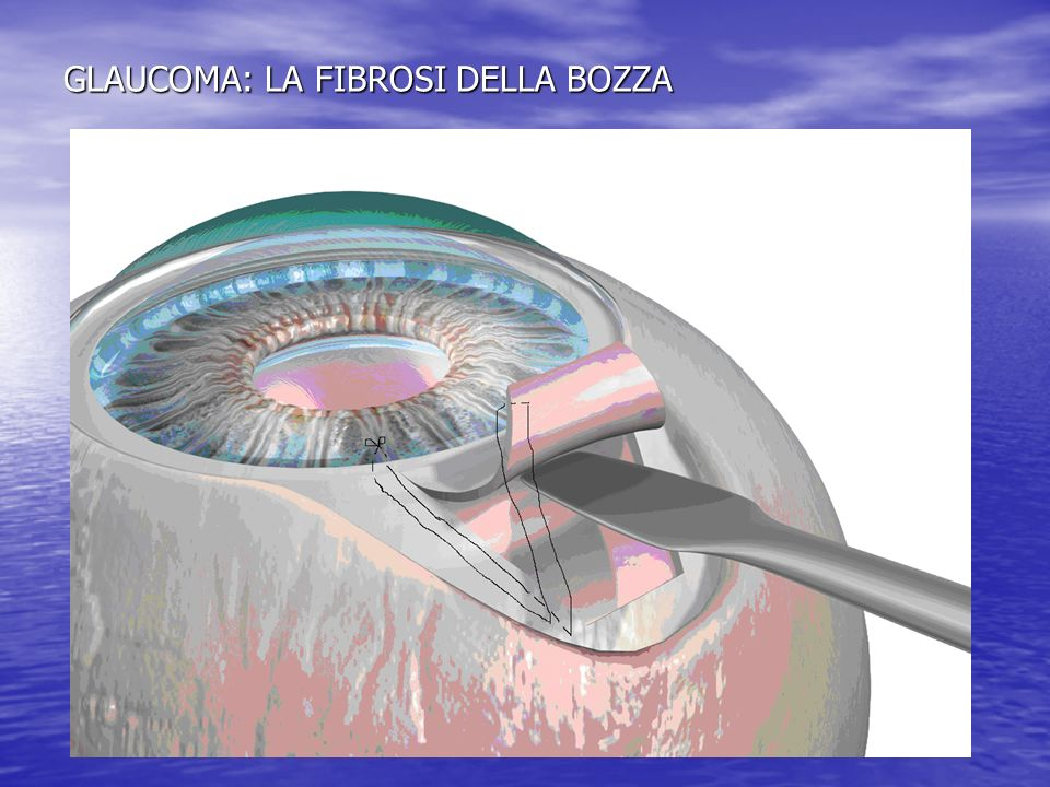 GLAUCOMA: LA FIBROSI DELLA BOZZA