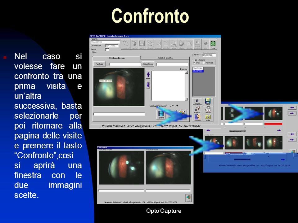 Opto Capture Galleria immagini Per visionare le immagini acquisite si clicca sul tasto Galleria; si potranno così scorrere le immagini di ambo gli occ