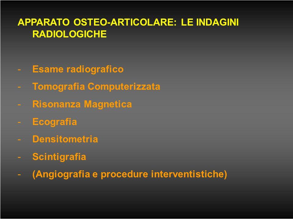 OSSO NORMALE E OSSO OSTEOPOROTICO