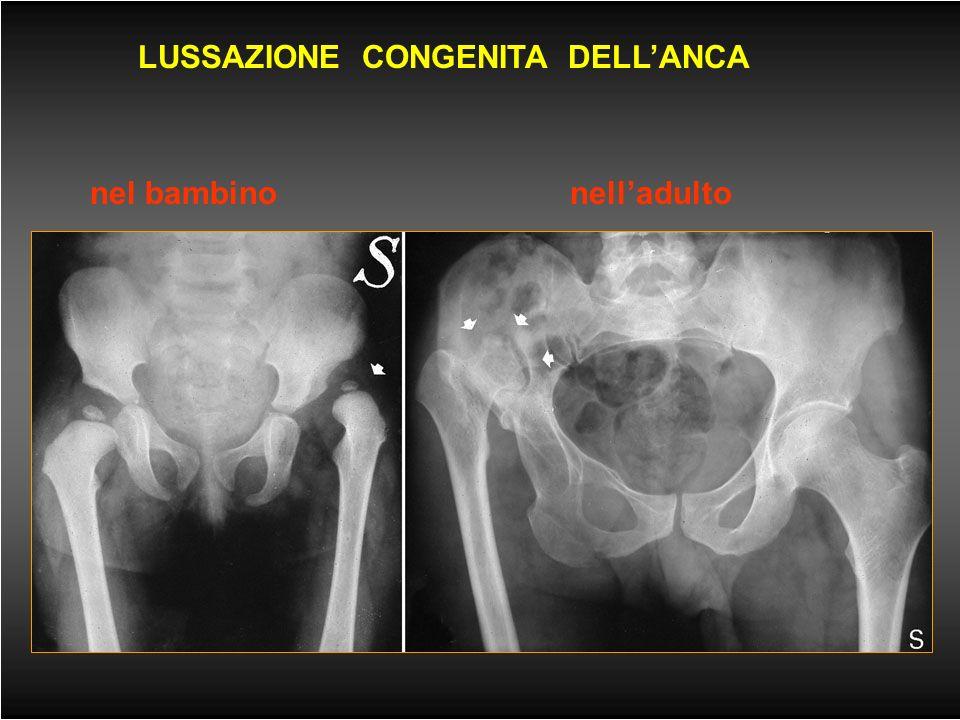 Malattie delle ossa (1) -ANOMALIE E MALFORMAZIONI -LESIONI TRAUMATICHE -fratture traumatiche, patologiche e da stress -lussazioni -PATOLOGIA INFETTIVA