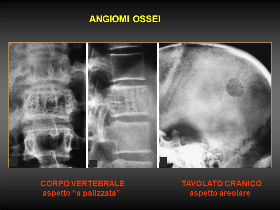 Malattie delle ossa (3) -TUMORI PRIMITIVI - costituiti da tessuto adiposo - a differenziazione vascolare - benigni: emangiomi - maligni: angiosarcomi
