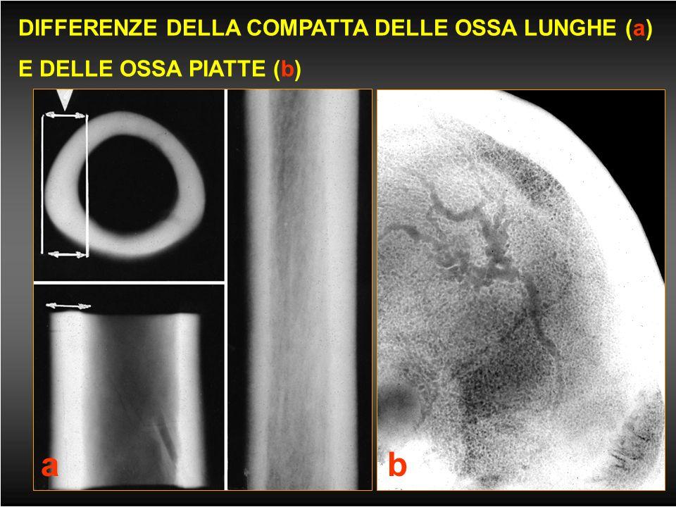 MACROSTRUTTURA OSSEA compatta spongiosa linea epifisaria corticale