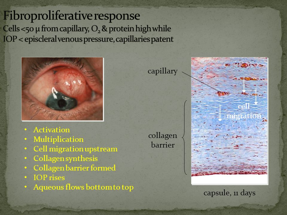 Activation Cell migration upstream Apoptosis Death messenger drift downstream Collagen breakdown IOP falls Aqueous flows bottom to top capsule, 56 days collagen breakdown death messenger drift