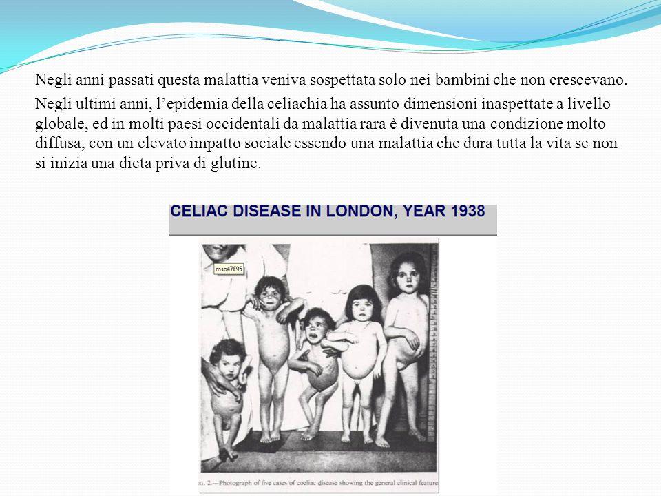 Negli anni passati questa malattia veniva sospettata solo nei bambini che non crescevano. Negli ultimi anni, lepidemia della celiachia ha assunto dime