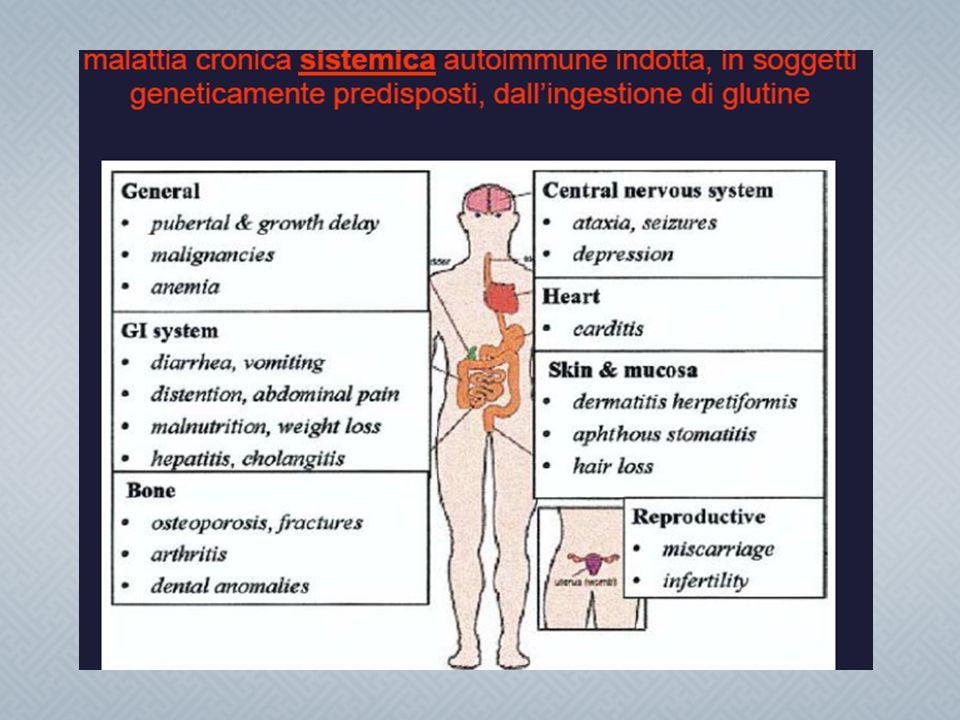 Malattia celiaca Glutine ingerito Genetica HLA II DQ2/DQ8 Antigliadina ( Ag esogeno ) Anti transglutaminasi ( Ag endogeno) Anti endomisio ( Ag endogeno ) Fattori di rischio (Sesso allattamento infezioni altro )