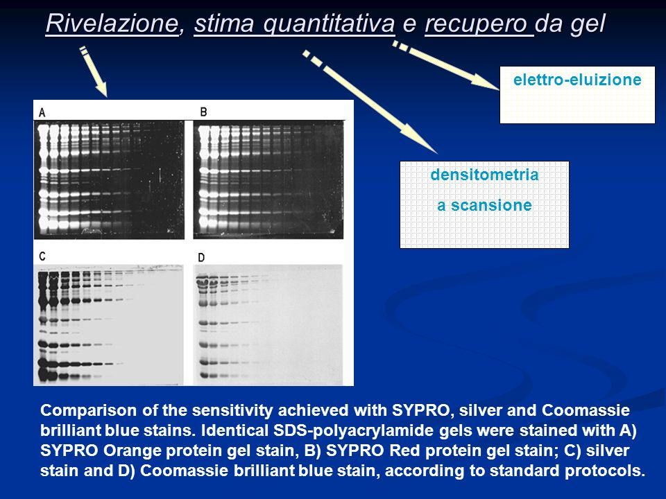 Rivelazione, stima quantitativa e recupero da gel Comparison of the sensitivity achieved with SYPRO, silver and Coomassie brilliant blue stains. Ident