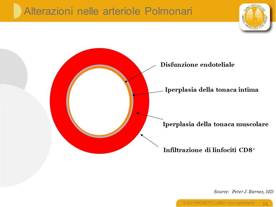 Alterazioni nelle arteriole Polmonari © 2011 PROGETTO LIBRA www.goldcopd.it 54 Disfunzione endoteliale Iperplasia della tonaca intima Iperplasia della tonaca muscolare Source: Peter J.