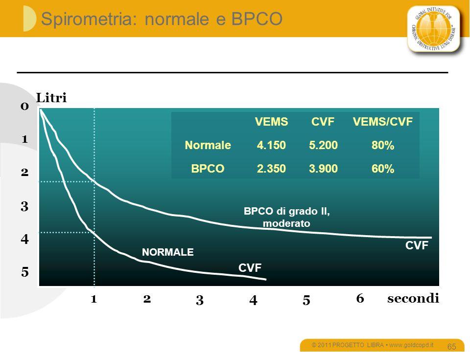 Spirometria: normale e BPCO © 2011 PROGETTO LIBRA www.goldcopd.it 65 5 0 1 2 3 4 123456 CVF BPCO di grado II, moderato NORMALE secondi Litri VEMSCVFVEMS/CVF Normale4.1505.20080% BPCO2.3503.90060%