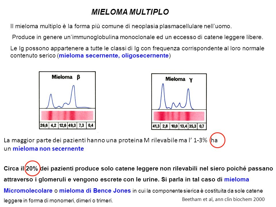 La maggior parte dei pazienti hanno una proteina M rilevabile ma l 1-3% ha un mieloma non secernente Circa il 20% dei pazienti produce solo catene leg