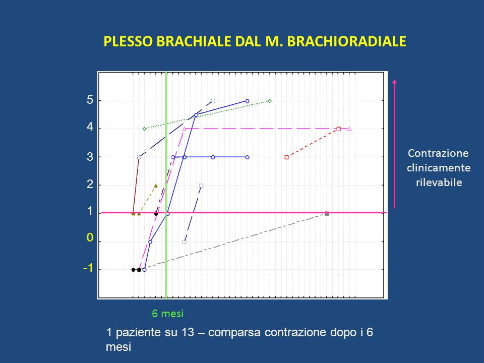 PLESSO BRACHIALE DAL M. BRACHIORADIALE 1 2 5 4 3 0 Contrazione clinicamente rilevabile 6 mesi 1 paziente su 13 – comparsa contrazione dopo i 6 mesi
