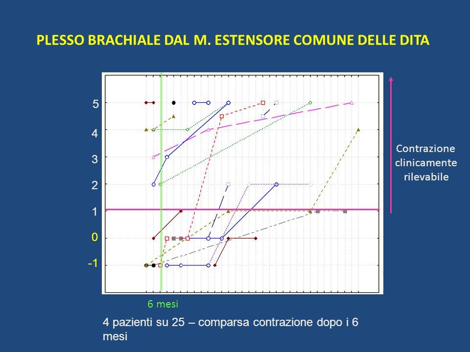 PLESSO BRACHIALE DAL M. ESTENSORE COMUNE DELLE DITA 1 2 5 4 3 0 Contrazione clinicamente rilevabile 6 mesi 4 pazienti su 25 – comparsa contrazione dop