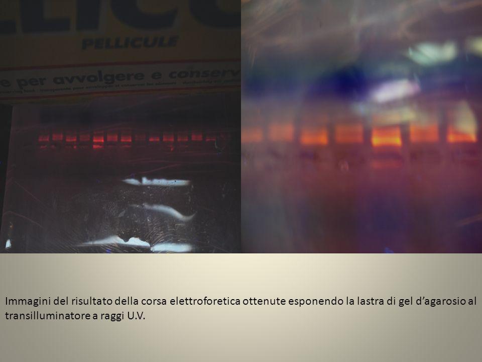 Immagini del risultato della corsa elettroforetica ottenute esponendo la lastra di gel dagarosio al transilluminatore a raggi U.V.