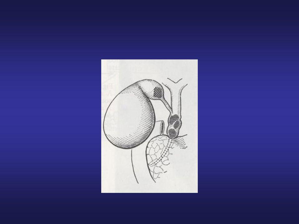 CAUSE DI ITTERO OSTRUTTIVO: Calcolosi Papilliti Odditi Pancreatiti croniche Cisti Neoplasie via biliare extraepatica Compressioni ab extrinseco (carcinoma testa del pancreas)