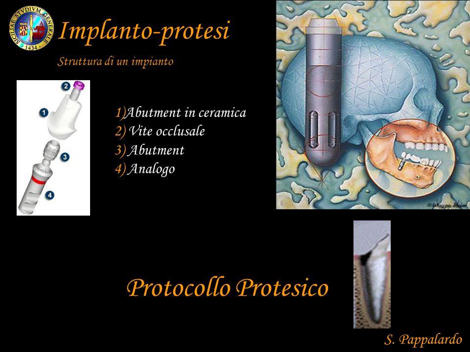 Implanto-protesi Protocollo Protesico 1)Abutment in ceramica 2) Vite occlusale 3) Abutment 4) Analogo Struttura di un impianto S.