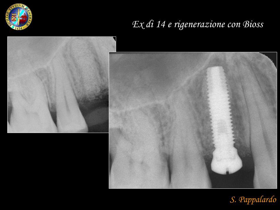 Ex di 14 e rigenerazione con Bioss S. Pappalardo