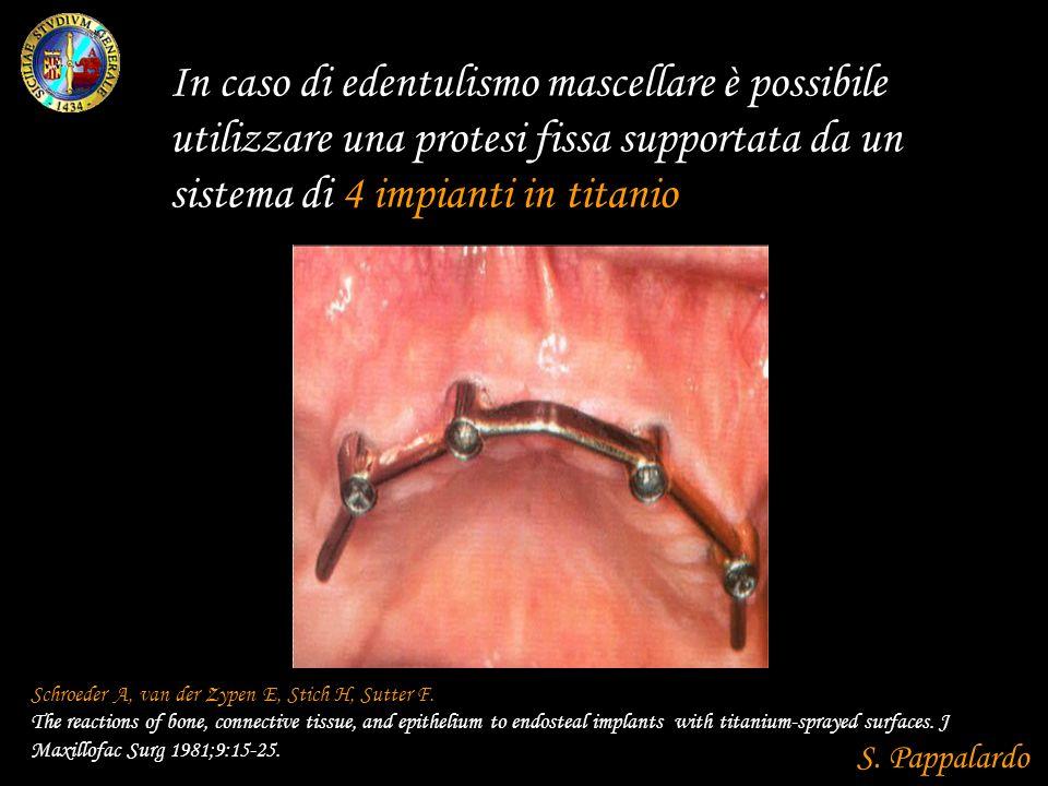 In caso di edentulismo mascellare è possibile utilizzare una protesi fissa supportata da un sistema di 4 impianti in titanio Schroeder A, van der Zypen E, Stich H, Sutter F.