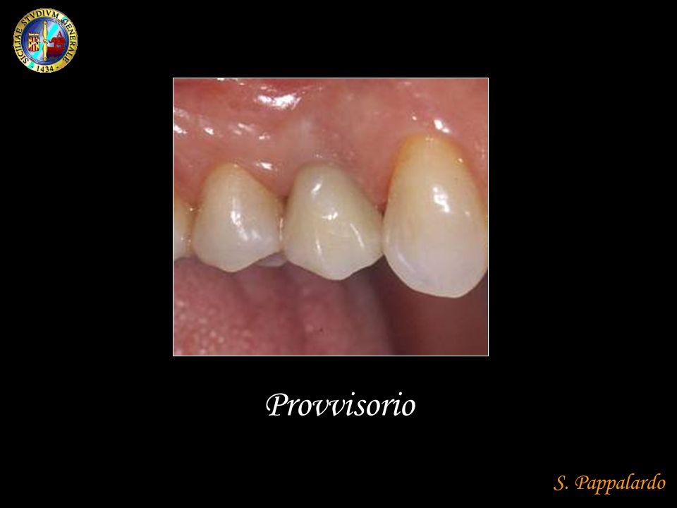 Posizionamento di 5 o 6 impianti nella mandibola edentula, al fine di fornire supporto e ritenzione alla protesi fissa.