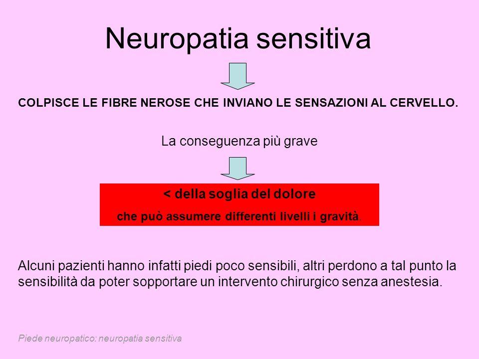 Piede neuropatico: neuropatia sensitiva Neuropatia sensitiva COLPISCE LE FIBRE NEROSE CHE INVIANO LE SENSAZIONI AL CERVELLO. La conseguenza più grave