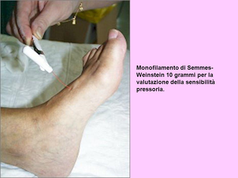 Monofilamento di Semmes- Weinstein 10 grammi per la valutazione della sensibilità pressoria.