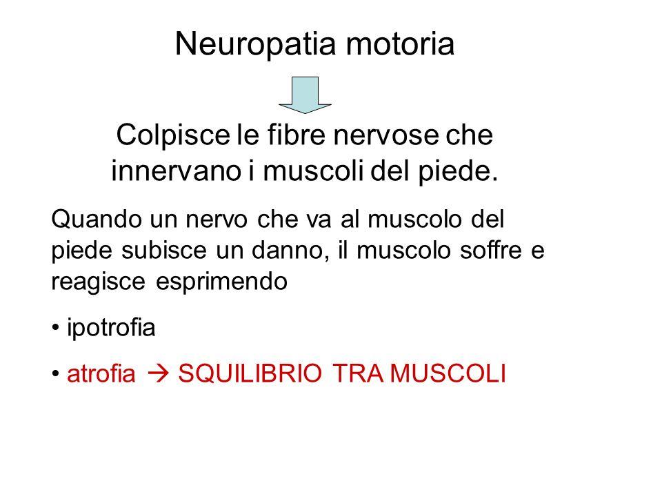 Neuropatia motoria Colpisce le fibre nervose che innervano i muscoli del piede. Quando un nervo che va al muscolo del piede subisce un danno, il musco