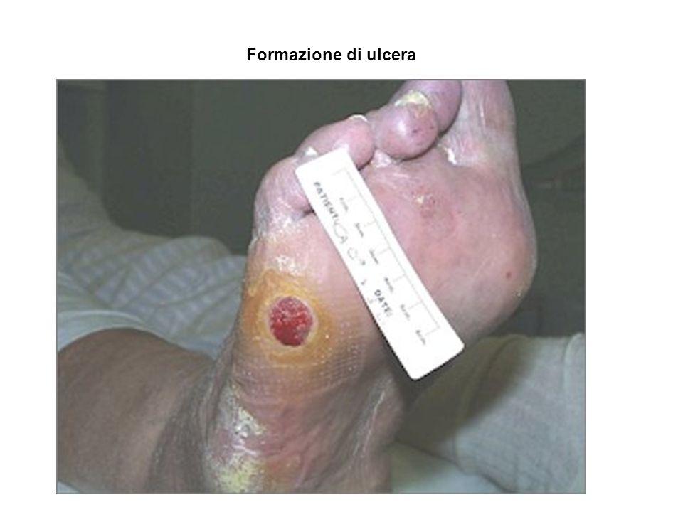 Formazione di ulcera