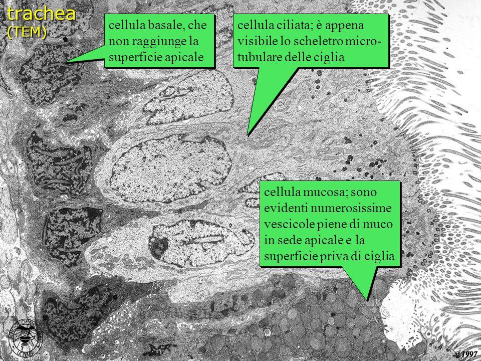 cellula basale, che non raggiunge la superficie apicale cellula ciliata; è appena visibile lo scheletro micro- tubulare delle ciglia cellula mucosa; s