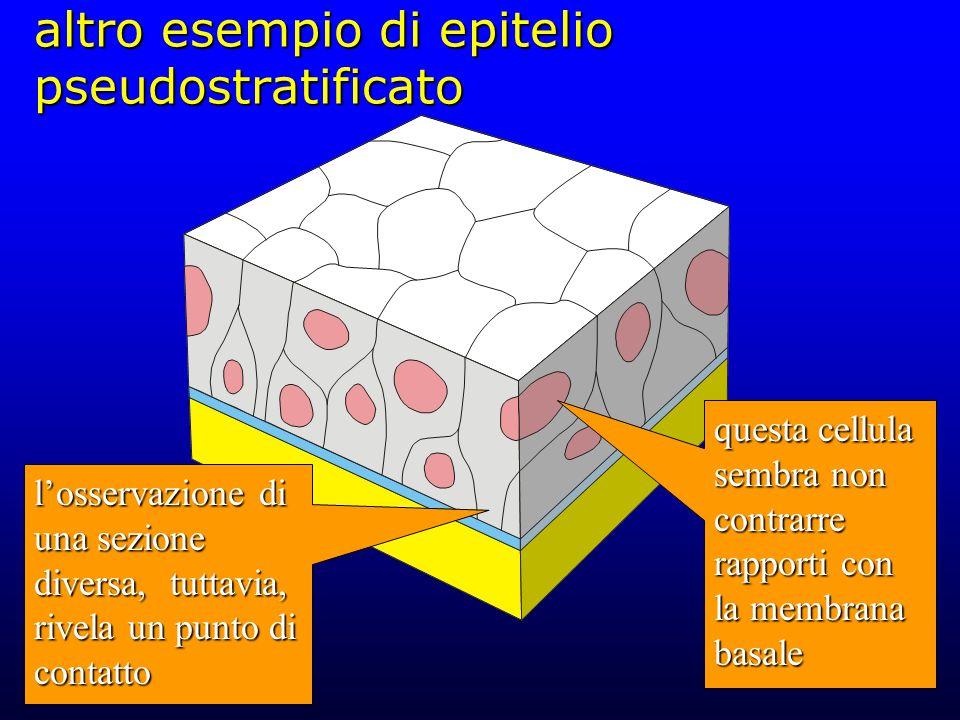 altro esempio di epitelio pseudostratificato questa cellula sembra non contrarre rapporti con la membrana basale losservazione di una sezione diversa,