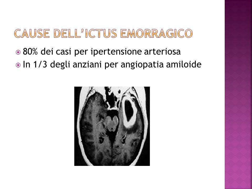 80% dei casi per ipertensione arteriosa In 1/3 degli anziani per angiopatia amiloide