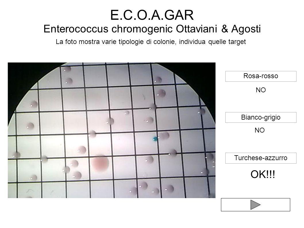 La foto mostra varie tipologie di colonie, individua quelle target Rosa-rosso Bianco-grigio Turchese-azzurro NO OK!!!